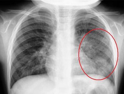 肺炎レントゲン写真の特徴は?症例画像で影の見方を解説